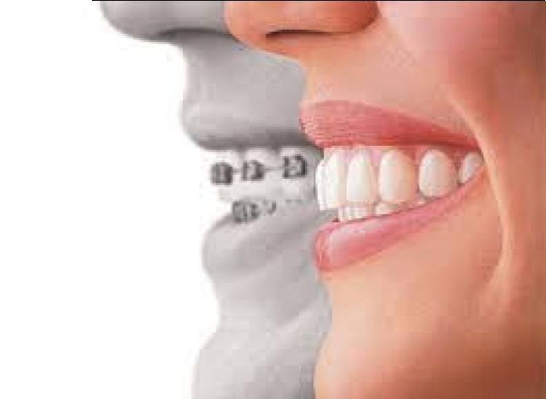 Tipos de ortodoncia: ¿cuál es la mía?