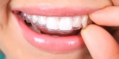 Guía de Ortodoncia