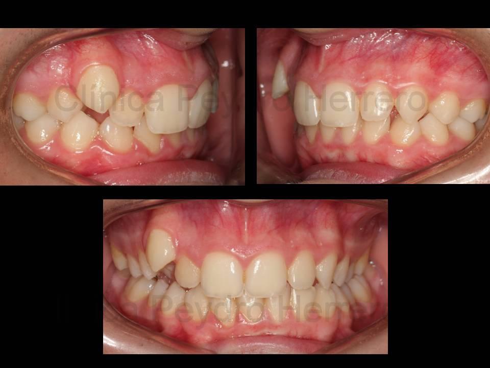Ortodoncia sin extracciones dentarias - Como alinear los dientes en casa sin brackets ...