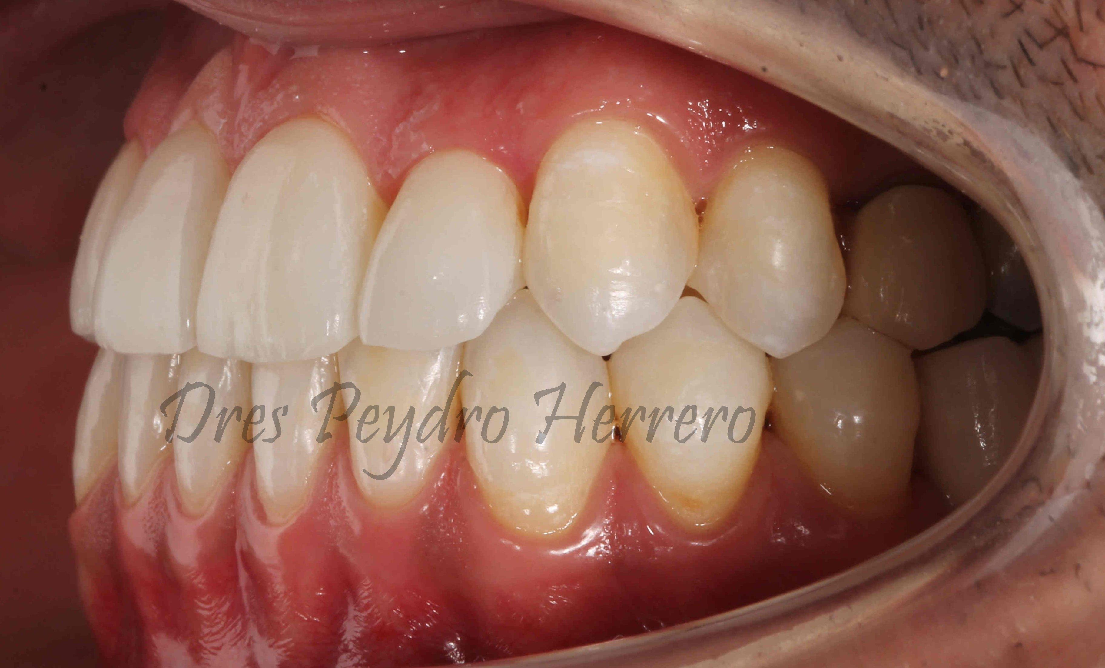la estética dental