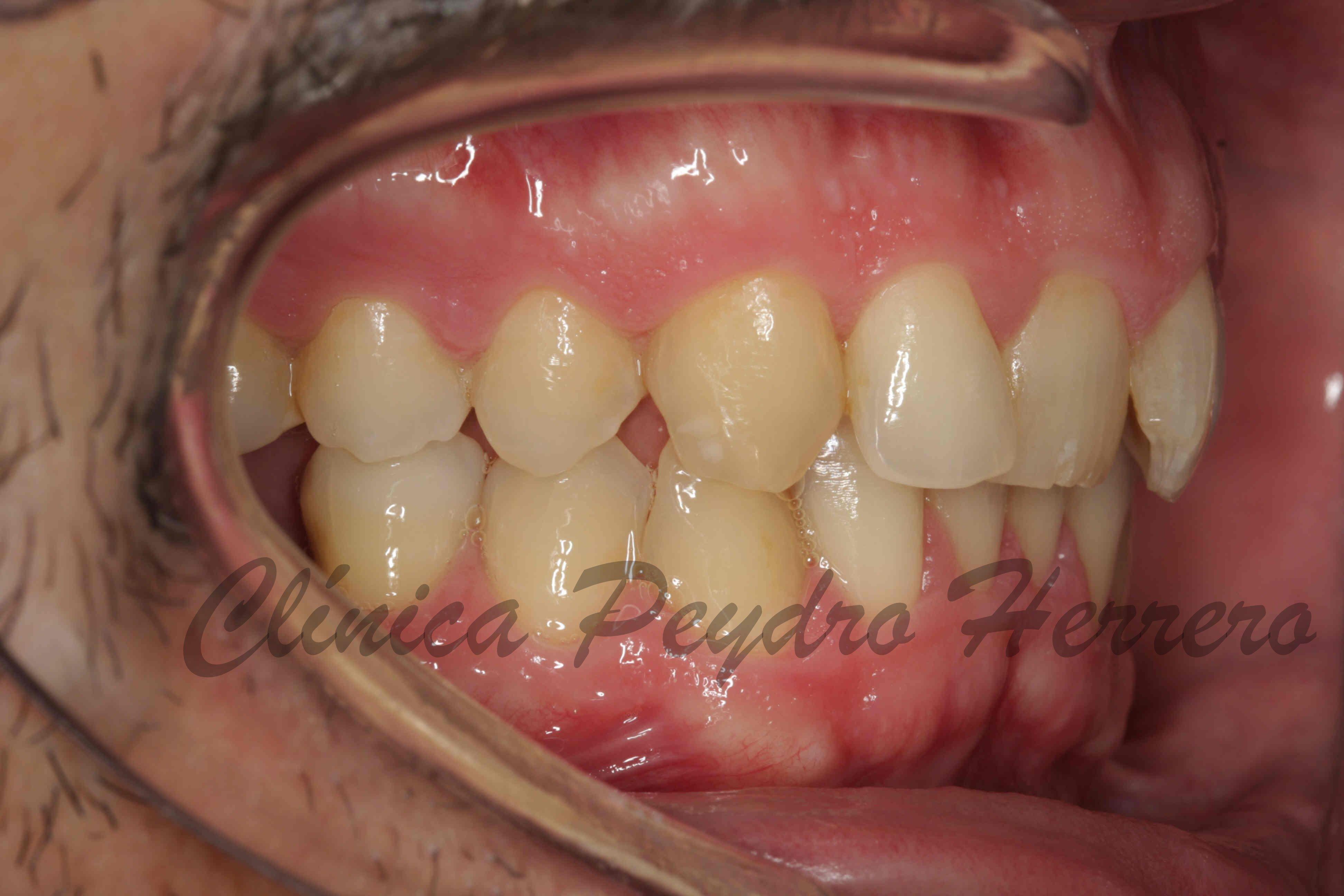 tratamiento de ortodoncia invisible