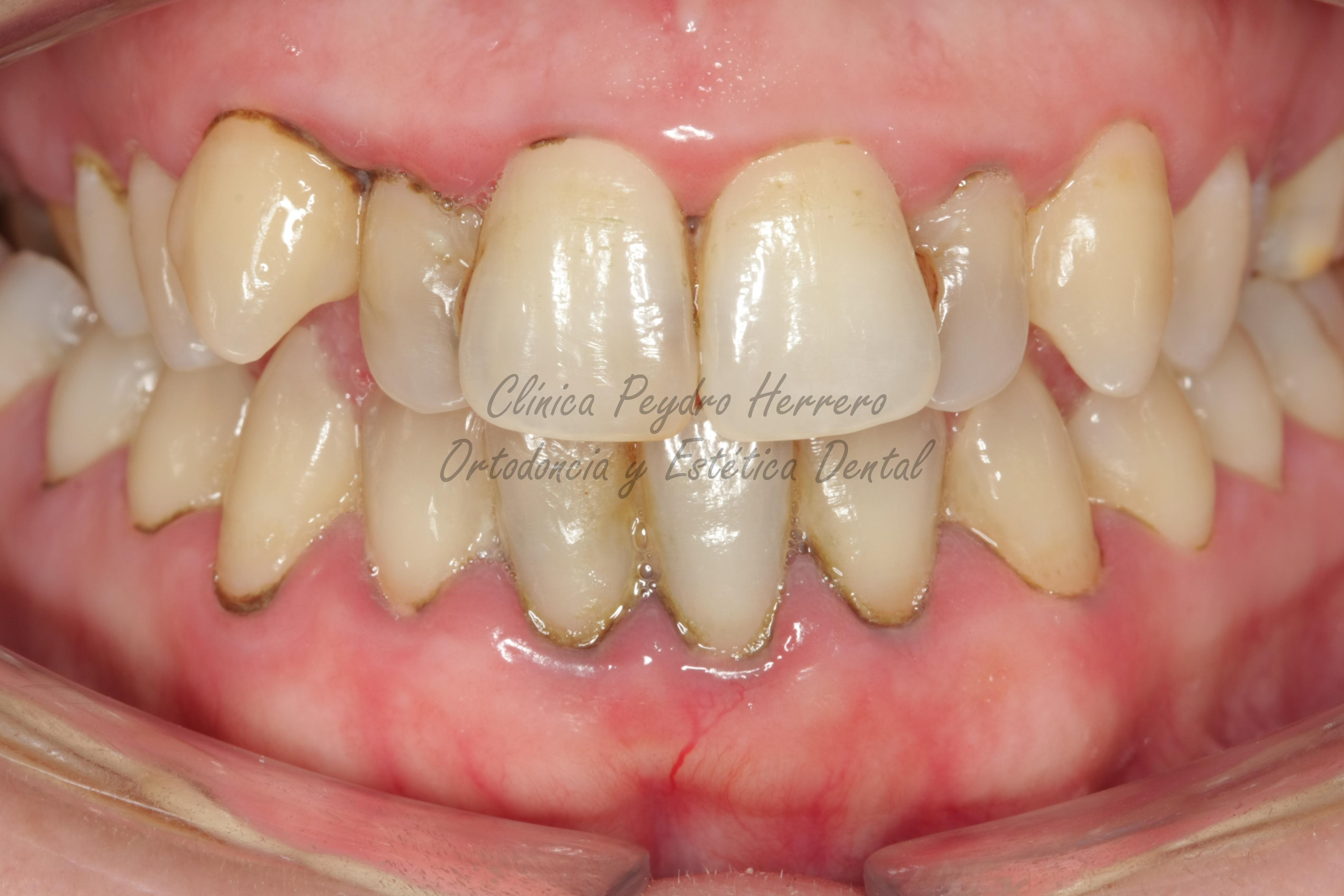 ortodoncia y blanqueamiento dental