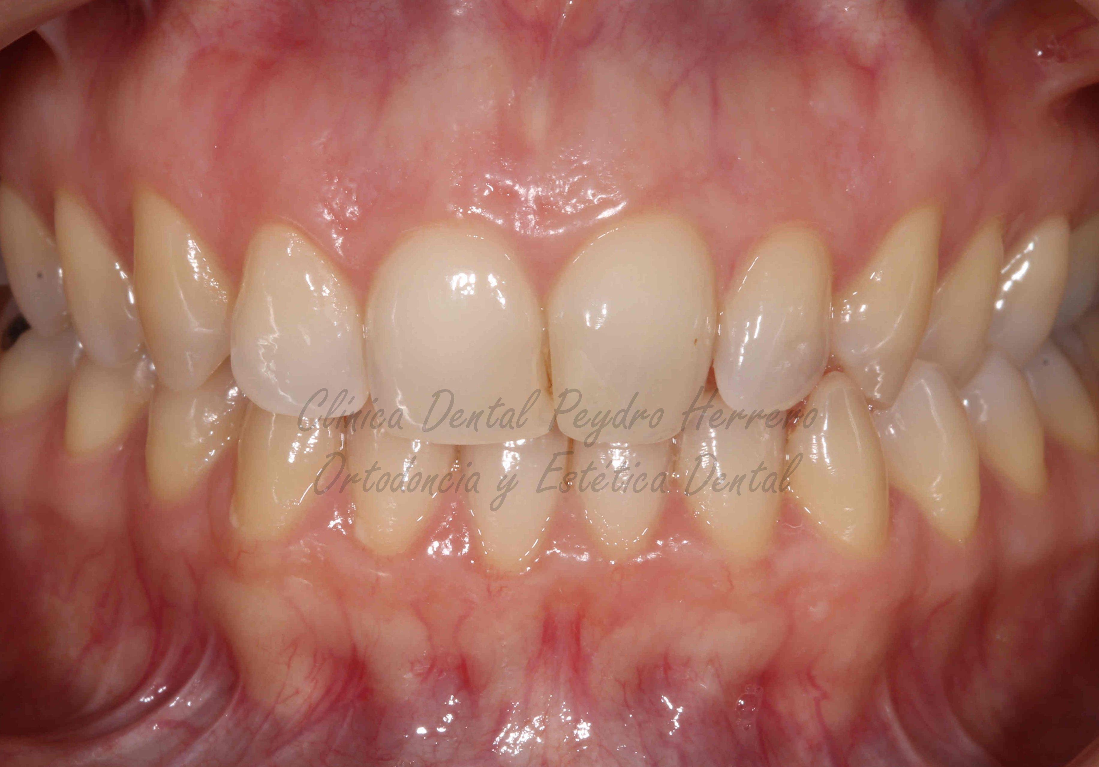 anta estética dental