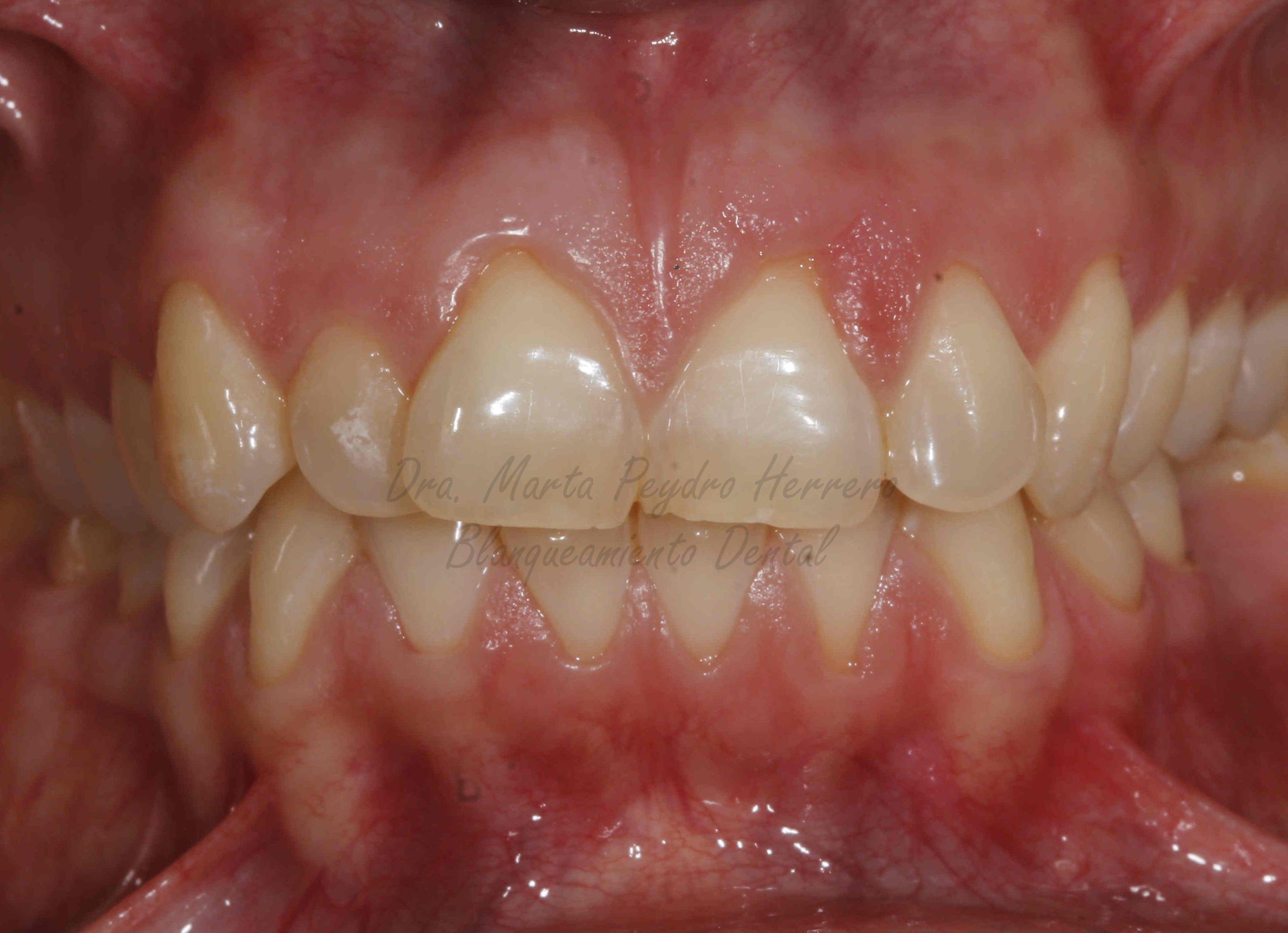 dientes blancos valencia