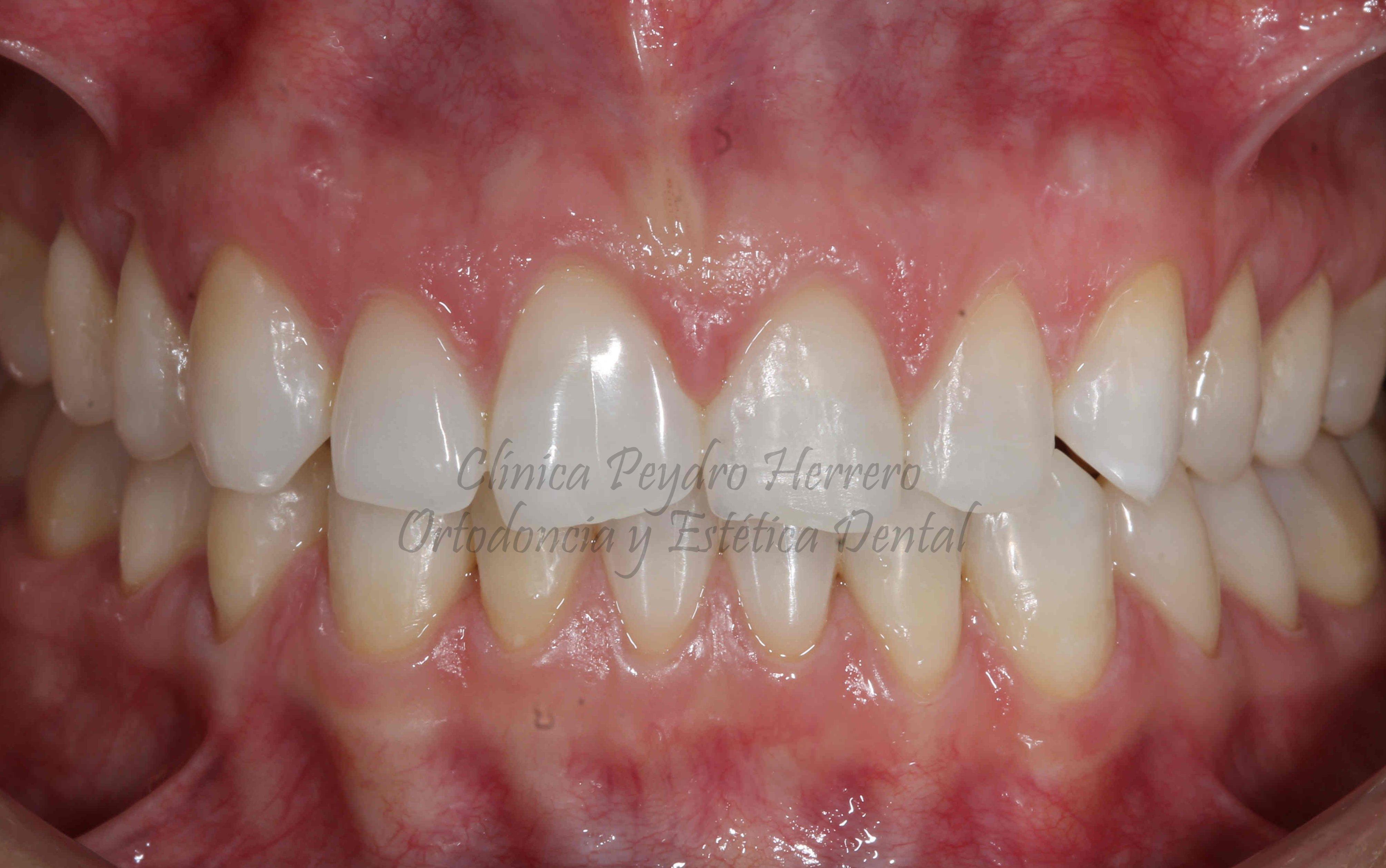 tratamiento estético dental