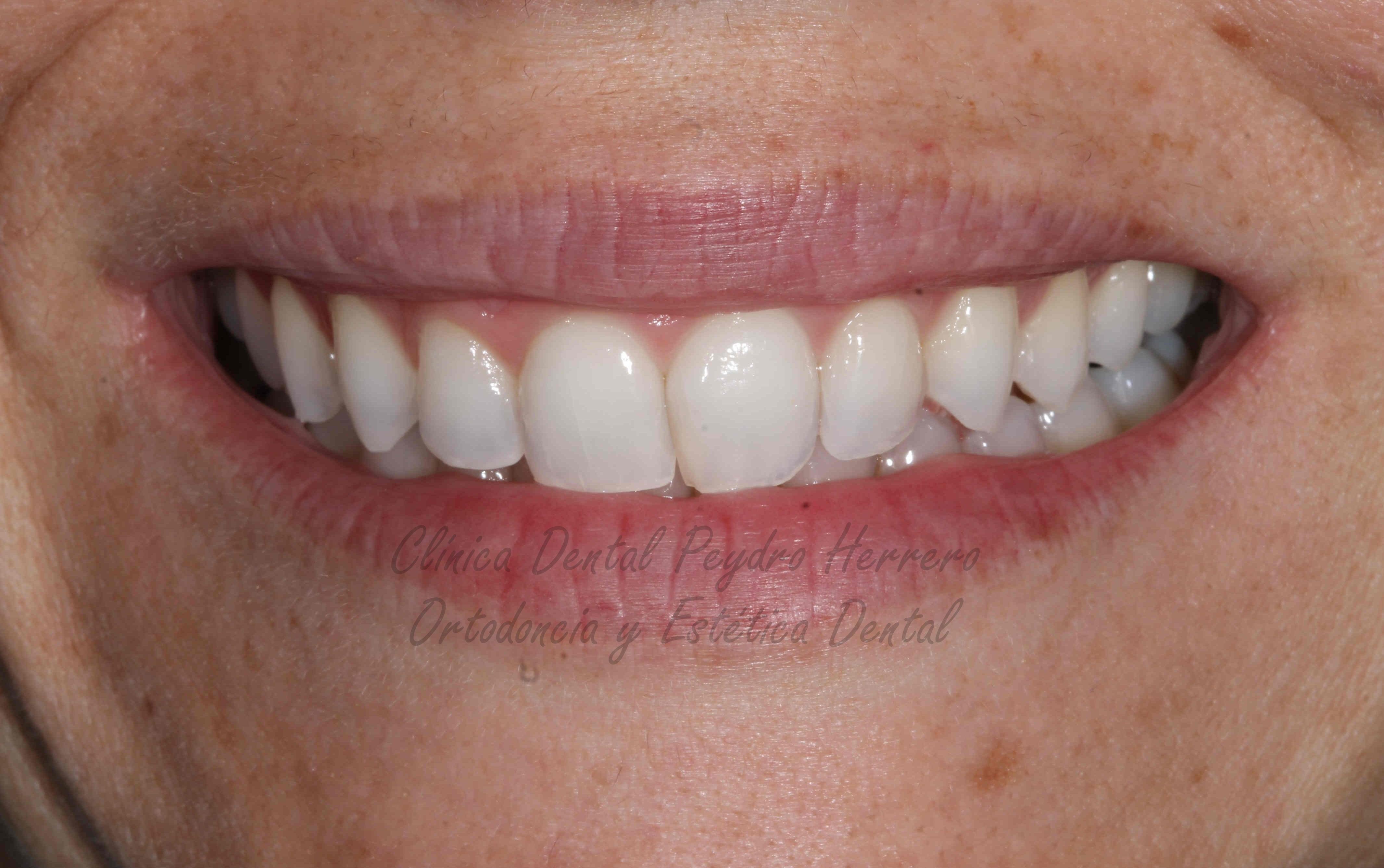 alta estética dental