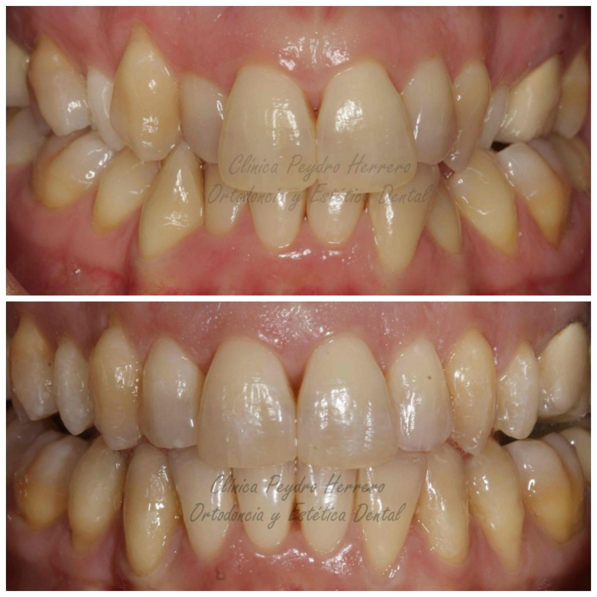 resultados con ortodoncia invisible