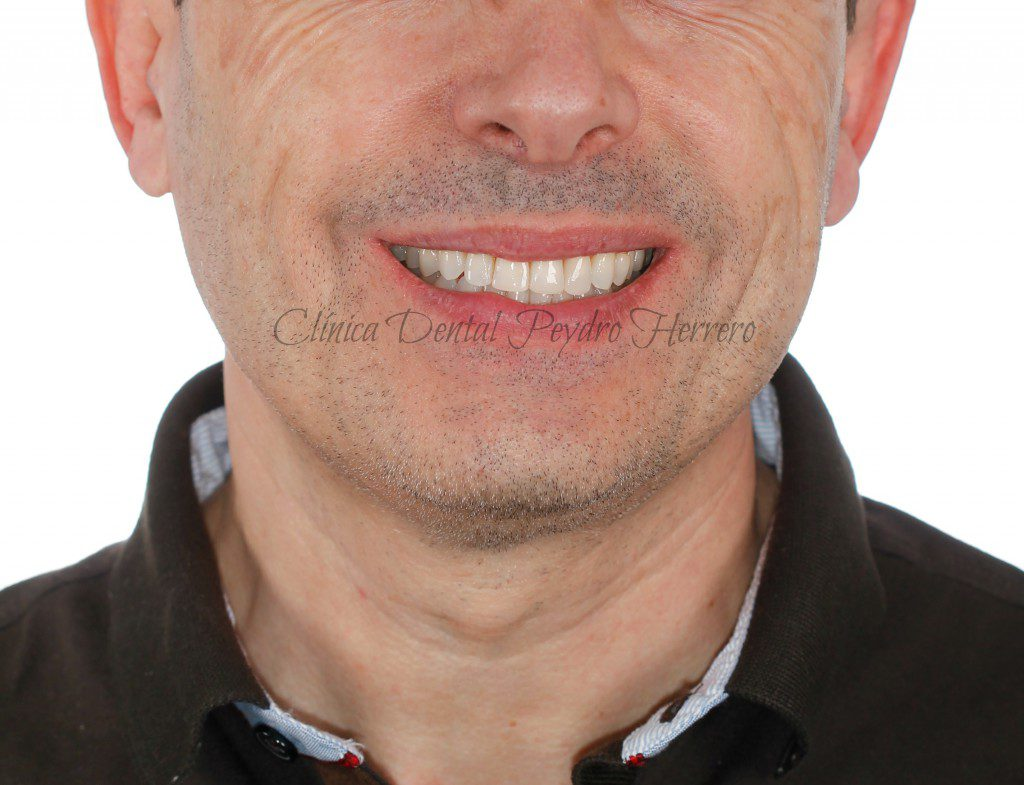 desgaste dental