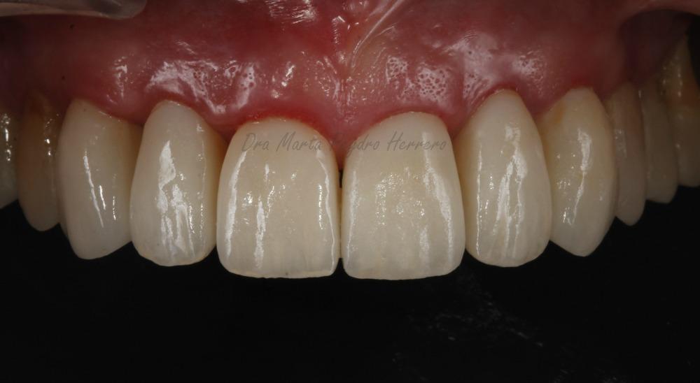 odontología para personas mayores