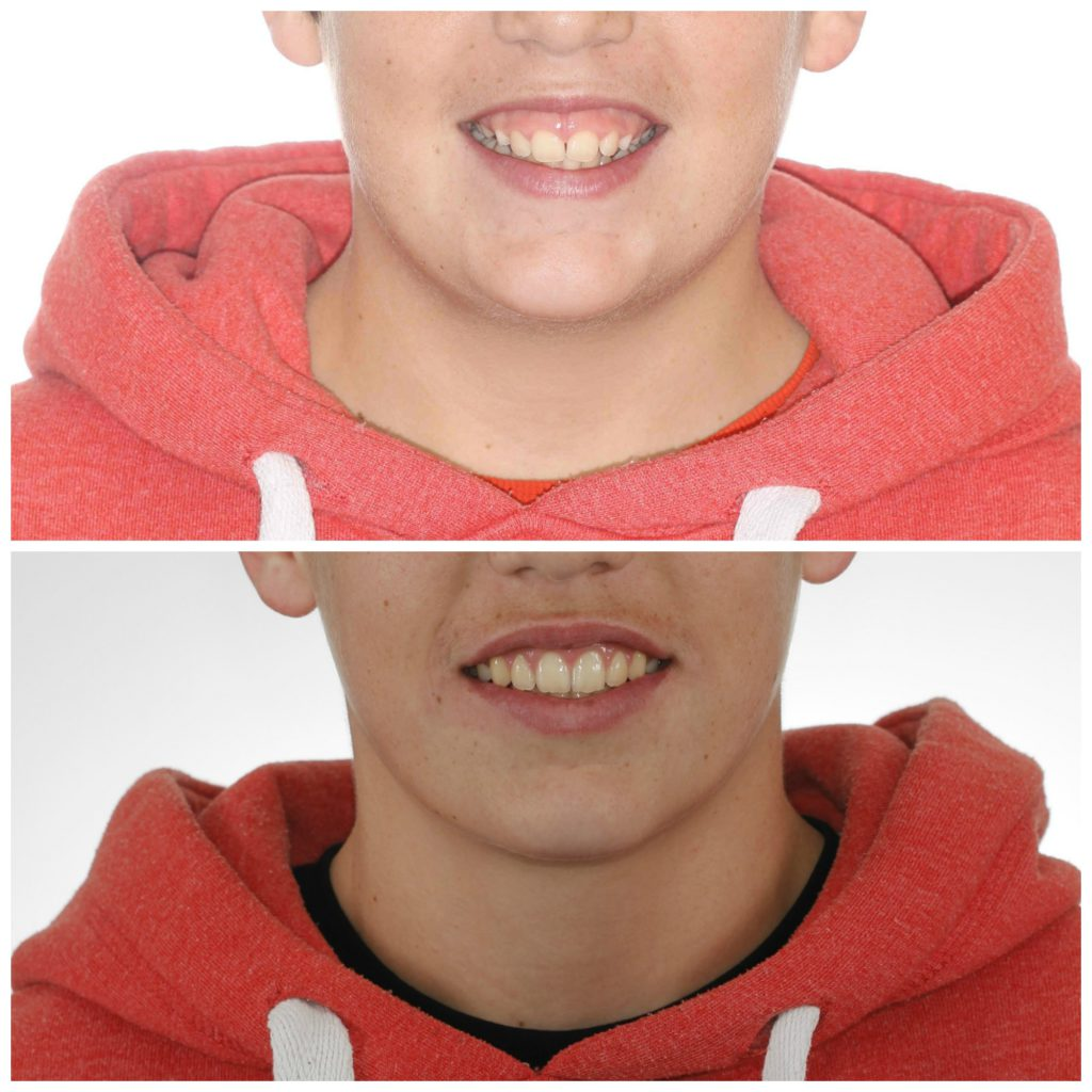 sonrisa gingival infantil