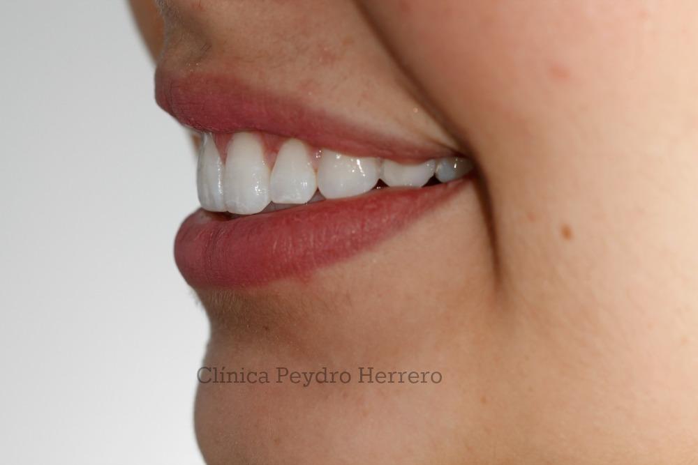 eliminar la sonrisa gingival