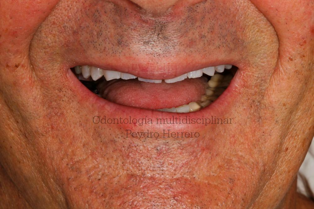 dientes desgastados por bruxismo