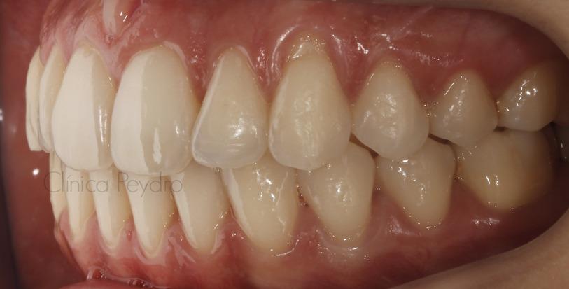 malposición dentaria y apiñamiento dental