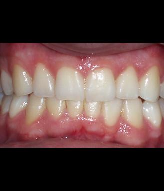 Después de la ortodoncia Invisalign