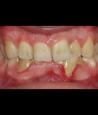 Antes de la ortodoncia Invisalign
