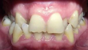 Antes del tratamiento con Invisalign y carillas de composite