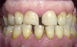 Antes del tratamiento de ortodoncia, cirugía, implantes y estética dental