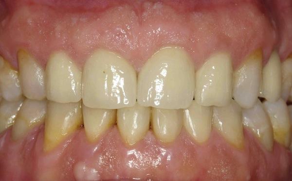 Después del tratamiento de ortodoncia, cirugía, implantes y estética dental