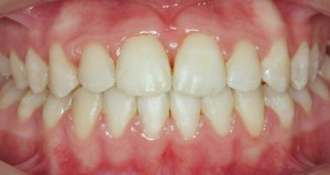 Después del tratamiento con ortodoncia