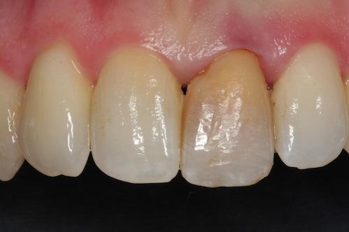 Blanqueamiento de un diente oscuro