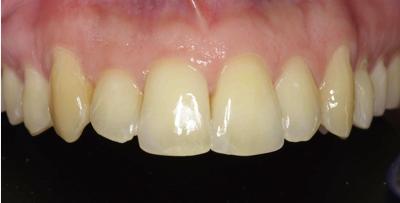Composites, la solucion a un diente roto