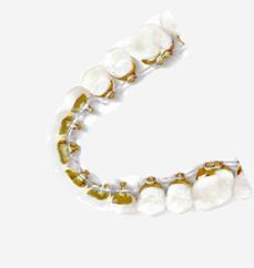 Higiene y cuidados durante la ortodoncia lingual