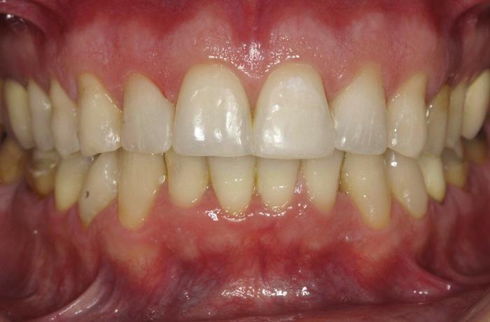 Tratamiento con Invisalign, carillas y blanqueamiento dental
