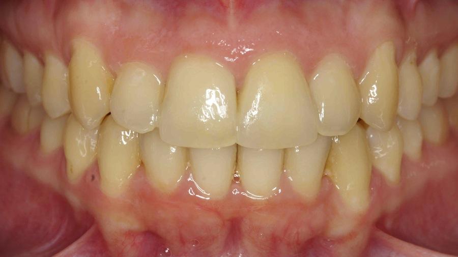 Tratamiento con Invisalign y carillas de Composite
