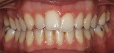 Antes del tratamiento con ortodoncia Invisalign