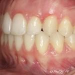 Después del tratamiento con ortodoncia Invisalign