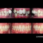 Antes y despues Invisalign estetica dental valencia