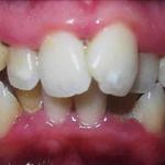 Antes Invisalign estetica dental valencia