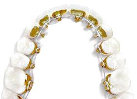 Ortodoncia Invisalign vs lingual
