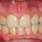 Ortodoncia Damon System