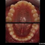 Ortodoncia Damon System Antes
