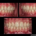 Ortodoncia Damon System Después