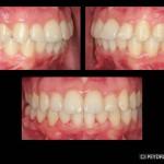resultado Invisalign estetica dental valencia