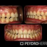 Antes de la Ortodoncia Sistema Damon