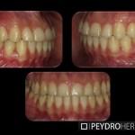 Después de la Ortodoncia Sistema Damon