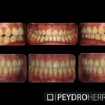 Sistema Damon: evitando la cirugia ortognatica