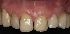 Solución a un diente roto con un implante inmediato