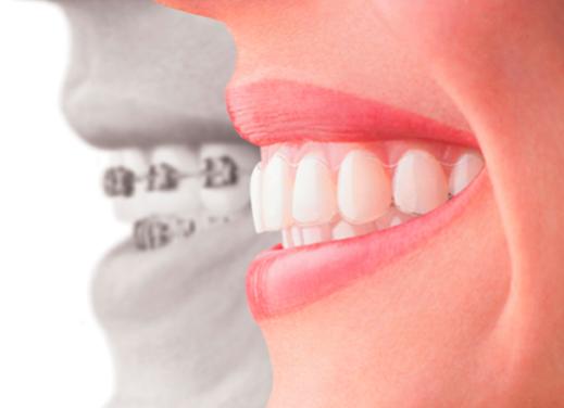 Llagas y ortodoncia Invisalign