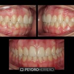 Invisalign final (frontal)