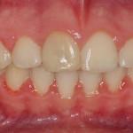 Tras la ortodoncia con Damon System antes del blanqueamiento