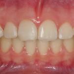Tras la ortodoncia con Damon System despues del blanqueamiento