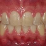 Antes del blanqueamiento dental