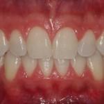 Blanqueamiento dental con férulas