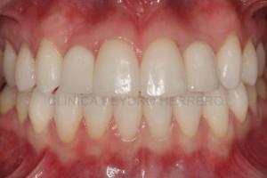 agenesia-dental-ortodoncia-implantes
