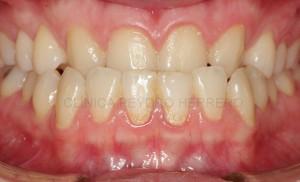 agenesia-dental-ortodoncia-implantes-antes