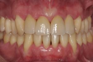 caso clínico de paciente con piorrea tratado con ortodoncia y carillas de porcelana